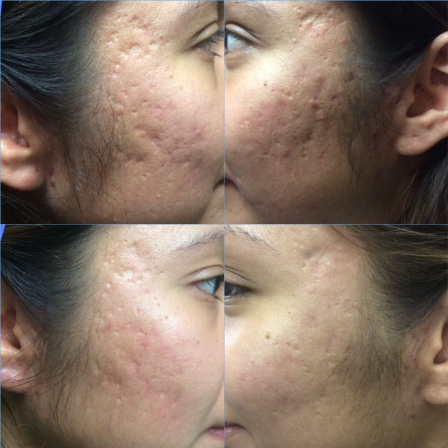 ACNE SCARS – Phoenix Tattoo Removal